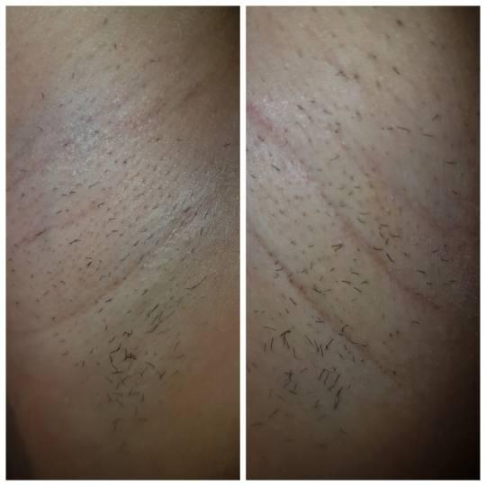Melanis Studio #zagreb Laserska epilacija Laserska epilacija IPL - nadusnica / brada / zulufi / pazu